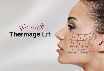 Thermage Treatment AT SIAN
