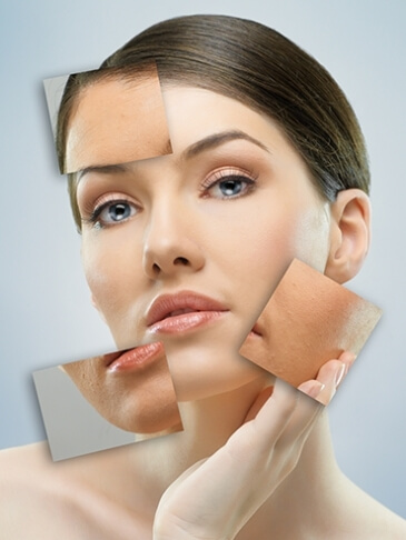 Thermage Treatment with SIAN