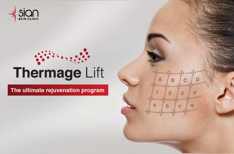 Thermage Lift with SIAN Skincare Laser Clinic Vietnam