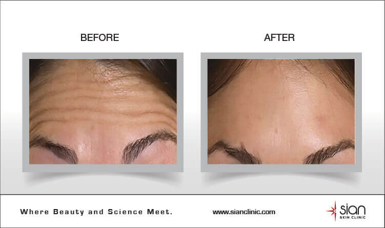 Botox Treatment SIAN Clinic Vietnam