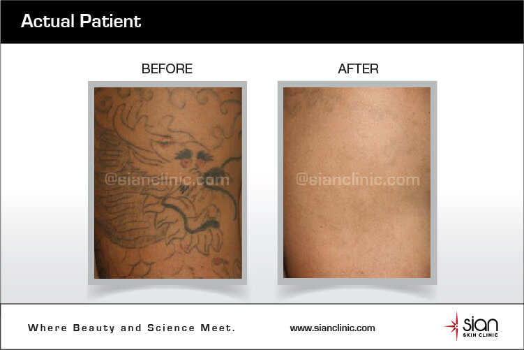 0bc69ffc3 Laser Tattoo Removal Procedure at SIAN Skincare Clinic