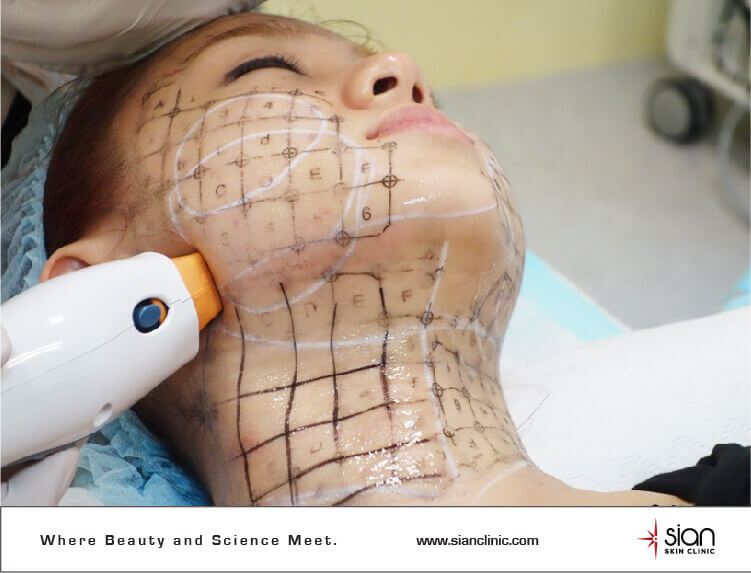 Thermage Lift at SIAN Skincare Laser Clinic Vietnam