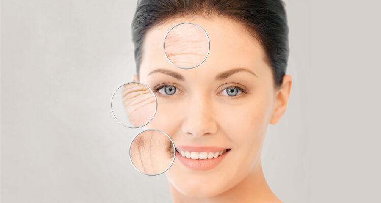 Skin Tightening Treatment SIAN