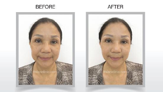 درمان لیفتینگ پوست HIFU