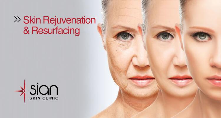 Skin Rejuvenation & Resurfacing