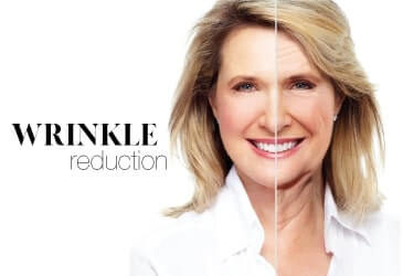 Wrinkle Treatment SIAN