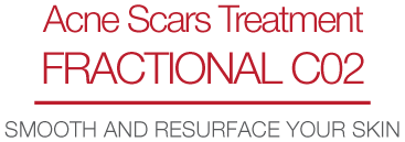 Acne Scars Treatment Fractional CO2