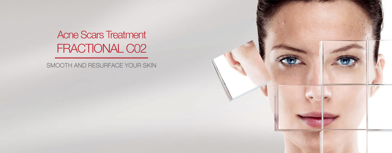 Fractional CO2 Treatment SIAN